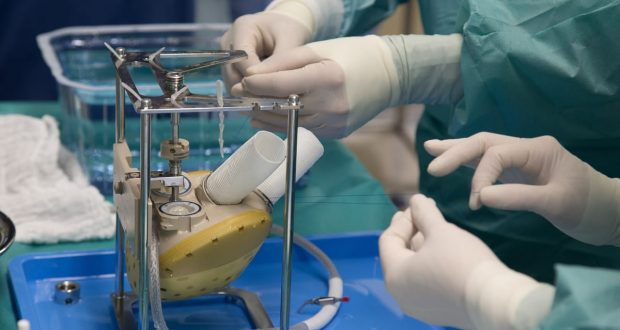 """""""كرمات"""".. قلب اصطناعي قابل للزراعة يمنح الأمل لآلاف من مرضى القلب"""